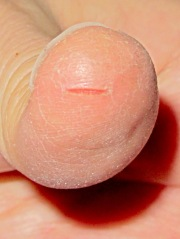 Split thumbprint