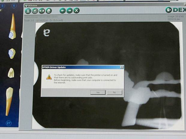 Epson Driver Update - X-Ray Screen